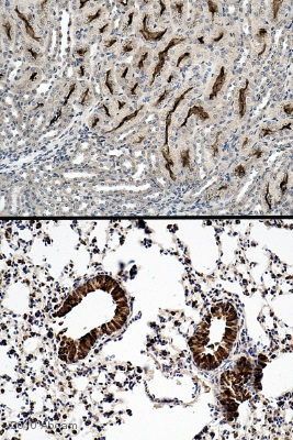 Immunohistochemistry (Formalin/PFA-fixed paraffin-embedded sections) - PON2 antibody (ab40969)