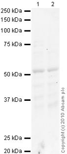 Western blot - Nicotinic Acetylcholine Receptor beta 2 antibody - Carboxyterminal end (ab41174)