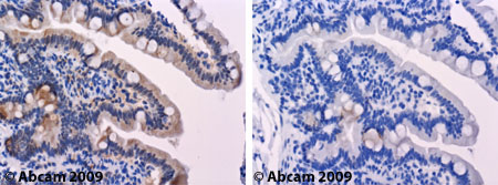 Immunohistochemistry (Formalin/PFA-fixed paraffin-embedded sections) - Anti-Glucose Transporter GLUT3 antibody (ab41525)