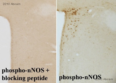 Immunohistochemistry (Formalin/PFA-fixed paraffin-embedded sections) - nNOS (neuronal) peptide (1409-1424) - phospho S1416 (ab41773)
