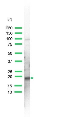 Western blot - Skp1 antibody, prediluted (ab41866)