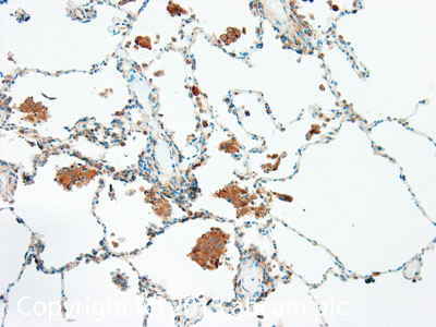 Immunohistochemistry (Formalin/PFA-fixed paraffin-embedded sections) - Anti-TRAIL antibody (ab42121)