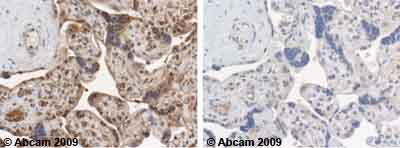Immunohistochemistry (Formalin/PFA-fixed paraffin-embedded sections)-14-3-3 epsilon antibody - Aminoterminal end(ab43057)