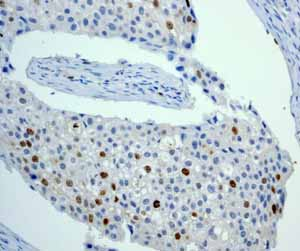 Immunohistochemistry (Formalin/PFA-fixed paraffin-embedded sections)-Anti-Aurora B antibody [EP1009Y](ab45145)