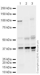 Western blot - Serine racemase antibody (ab45434)