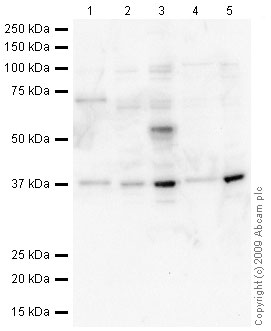 Western blot - Serine racemase antibody (ab45545)