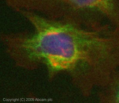 Immunocytochemistry/ Immunofluorescence - Rab25 antibody (ab45855)