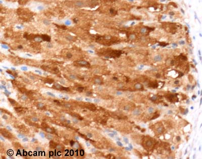 Immunohistochemistry (Formalin/PFA-fixed paraffin-embedded sections) - IL17F antibody (ab46000)