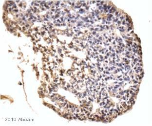 Immunohistochemistry (Formalin/PFA-fixed paraffin-embedded sections) - Lin28 antibody (ab46020)
