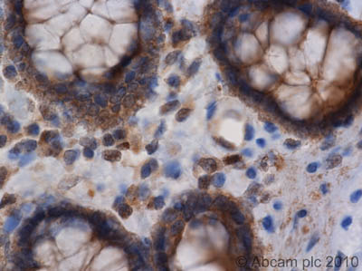 Immunohistochemistry (Formalin/PFA-fixed paraffin-embedded sections)-NEDD4-2 antibody(ab46521)