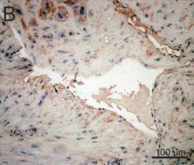 Immunohistochemistry (Formalin/PFA-fixed paraffin-embedded sections) - Anti-4 Hydroxynonenal antibody (ab46545)