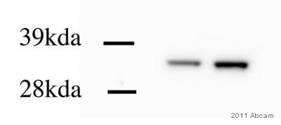 Western blot - Calponin antibody [EP798Y] (ab46794)