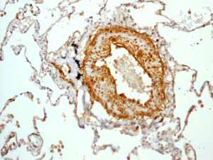Immunohistochemistry (Formalin/PFA-fixed paraffin-embedded sections)-Anti-Calponin antibody [EP798Y](ab46794)