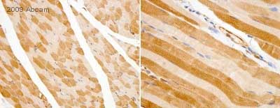 Immunohistochemistry (Formalin/PFA-fixed paraffin-embedded sections) - LDHA antibody (ab47010)