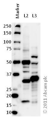 Western blot - Anti-VDAC2 antibody (ab47104)