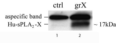 Western blot - Phospholipase A2 X antibody (ab47111)