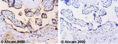 Immunohistochemistry (Formalin/PFA-fixed paraffin-embedded sections)-Ezrin (phospho Y353) antibody(ab47273)