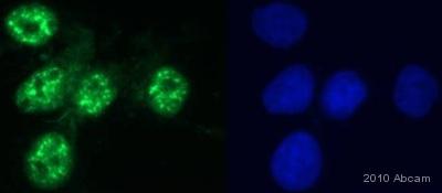Immunocytochemistry/ Immunofluorescence - FOXO3A (phospho S253) antibody (ab47285)