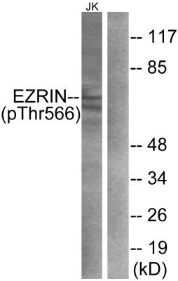 Western blot - Ezrin (phospho T567) antibody (ab47293)
