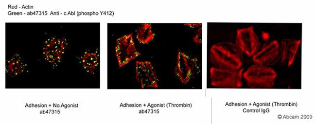 Immunocytochemistry/ Immunofluorescence - c Abl (phospho Y412) antibody (ab47315)