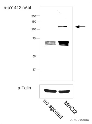 Western blot - c Abl (phospho Y412) antibody (ab47315)