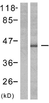 Western blot - Anti-ERK1 (phospho Y204) + ERK2 (phospho Y187) antibody (ab47339)