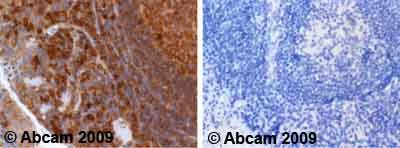 Immunohistochemistry (Formalin/PFA-fixed paraffin-embedded sections)-Cdc25A antibody(ab47400)