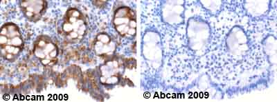 Immunohistochemistry (Formalin/PFA-fixed paraffin-embedded sections)-ERK1 antibody(ab47430)