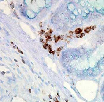 Immunohistochemistry (Formalin/PFA-fixed paraffin-embedded sections) - Hsp70 antibody [C92F3A-5] (ab47455)