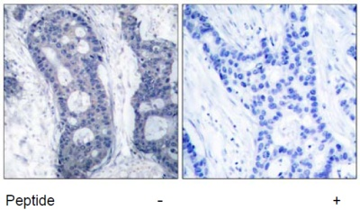 Immunohistochemistry (Formalin/PFA-fixed paraffin-embedded sections) - eIF4E antibody (ab47481)