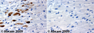 Immunohistochemistry (Formalin/PFA-fixed paraffin-embedded sections)-Chk1 antibody(ab47574)
