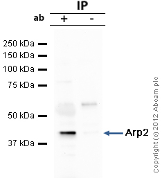Immunoprecipitation - Anti-Arp2 antibody (ab47654)