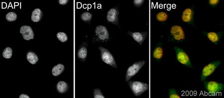 Immunocytochemistry/ Immunofluorescence - Dcp1a antibody (ab47811)