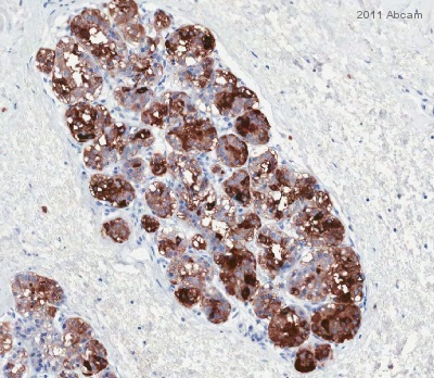 Immunohistochemistry (Formalin/PFA-fixed paraffin-embedded sections) - Anti-Casein  antibody [F20.14] (ab47972)