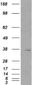 Western blot - TIM 3 antibody (ab47997)