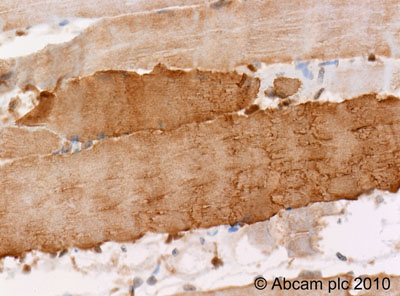 Immunohistochemistry (Formalin/PFA-fixed paraffin-embedded sections)-Myosin Light Chain 2 antibody(ab48003)