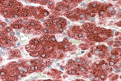 Immunohistochemistry (Formalin/PFA-fixed paraffin-embedded sections) - Anti-Cytochrome P450 17A1 antibody (ab48019)