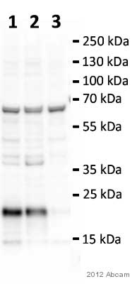 Western blot - Anti-CNBP antibody (ab48027)
