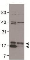 Western blot - Anti-LC3B antibody (ab48394)