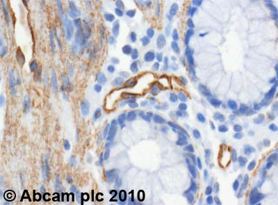 Immunohistochemistry (Formalin/PFA-fixed paraffin-embedded sections)-PTRF antibody(ab48824)