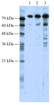 Western blot - SATB1 antibody (ab49061)