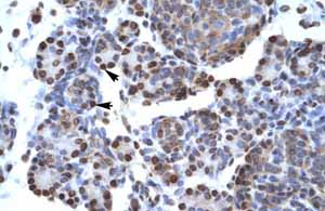 Immunohistochemistry (Formalin/PFA-fixed paraffin-embedded sections)-Anti-CtBP1 antibody(ab49194)