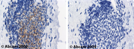 Immunohistochemistry (Formalin/PFA-fixed paraffin-embedded sections) - MMP9 antibody [15W2] (ab49478)