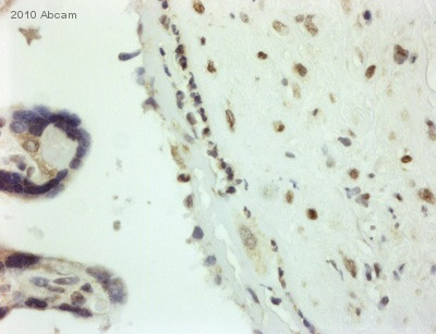 Immunohistochemistry (Formalin/PFA-fixed paraffin-embedded sections) - Sumo 1 antibody (ab49767)