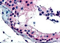 Immunohistochemistry (Formalin/PFA-fixed paraffin-embedded sections) - FOXE1 antibody (ab5080)