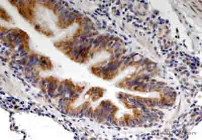 Immunohistochemistry (Formalin/PFA-fixed paraffin-embedded sections) - Anti-CTGF antibody (ab5097)