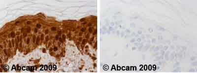 Immunohistochemistry (Formalin/PFA-fixed paraffin-embedded sections)-Hsp70 antibody [2A4](ab5442)