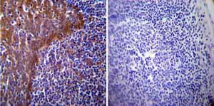 Immunohistochemistry (Formalin/PFA-fixed paraffin-embedded sections)-Anti-Hsp70 antibody [4G4](ab5444)