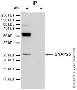 - Anti-SNAP25 antibody (ab5666)