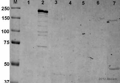 Western blot - Anti-ARAP3 antibody (ab5911)